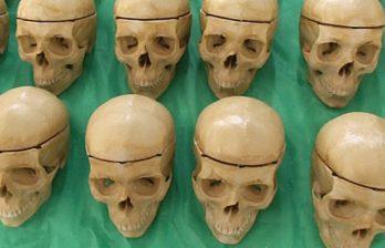 <!--:ru-->В Бразилии существует фабрика по производству человеческих костей<!--:-->