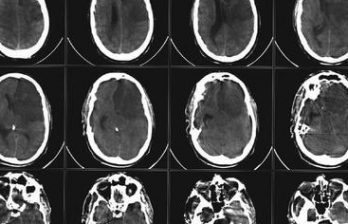 <!--:ru-->Впервые открыт механизм восстановления нервных клеток после инсульта<!--:-->