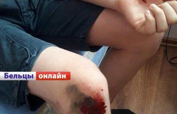 (ФОТО) Свора собак напала на ребёнка 12-ти лет в Бельцах