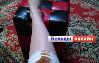 (ФОТО) На Нижнем Баме собака укусила девушку за ногу
