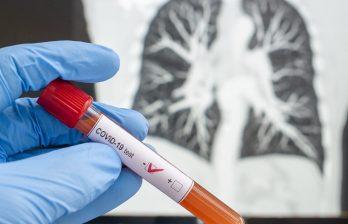 В Молдове тестируют препарат для лечения коронавируса